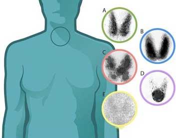spinyhrographima-thyroeidoys